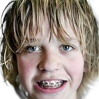 Nederland,Hoorn ,7 februari 2008..Beugeldrager tijdens.