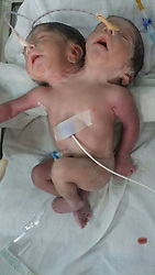 October 5, 2016 - Ajmer, RAJASTHAN, INDIA - RAJASTHAN, INDIA - OCTOBER, 03, 2016: A two-headed baby, alive, just an hour after it was born at Jawaharlal Nehru Medical College in Rajasthan, India.....The Indian mother, 20, gave birth to the two-headed baby boy but died 32 hours after the birth. The baby boy was born via C-section and weighing 5lbs 7oz, with two heads, two necks and two spines trapped in one body.....Pictures Supplied by: Cover Asia Press (Credit Image: © Cover Asia Press/Cover Asia via ZUMA Press)