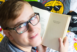 © Licensed to London News Pictures . 12/08/2017 . Manchester , UK . CONNOR SHAW (17 - turns 18 today - 13/08/2017) with a copy of cricketer Michael Vaughan's book , which is dedicated to him , in his home , ahead of his birthday . Vaughan has stood by Connor as he has grown up . When he was born doctors said he wouldn't live long due to a heart condition but he's doing well after receiving expert care , multiple operations and a heart transplant . His parents are campaigning for an opt-out organ donor register . See http://www.manchestereveningnews.co.uk/news/greater-manchester-news/never-thought-son-would-reach-13469965 for more information . Photo credit : Joel Goodman/LNP