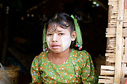 Portrait of a young girl wearing thanaka living by the Ayeyarwady river on 25th May 2016 in Mandalay, Myanmar. Thanaka is worn by many Burmese women and girls as a traditional sunscreen and moisturiser