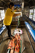 20 MAY 2013 - MAE KASA, TAK, THAILAND:  A woman with an etopic pregnancy is transported to a Thai hospital for further treatment. Health professionals are seeing increasing evidence of malaria resistant to artemisinin coming out of the jungles of Southeast Asia. Artemisinin has been the first choice for battling malaria in Southeast Asia for 20 years. In recent years though,  health care workers in Cambodia and Myanmar (Burma) are seeing signs that the malaria parasite is becoming resistant to artemisinin. Scientists who study malaria are concerned that history could repeat itself because chloroquine, an effective malaria treatment until the 1990s, first lost its effectiveness in Cambodia and Burma before spreading to Africa, which led to a spike in deaths there. Doctors at the Shaklo Malaria Research Unit (SMRU), which studies malaria along the Thai Burma border, are worried that artemisinin resistance is growing at a rapid pace. Dr. Aung Pyae Phyo, a Burmese physician at a SMRU clinic just a few meters from the Burmese border, said that in 2009, 90 percent of patients were cured with artemisinin, but in 2010, it dropped to about 70 percent and is now between 55 and 60 percent. He said the concern is that as it becomes more difficult to clear the parasite from a patient, progress that has been made in combating malaria will be lost and the disease could make a comeback in Southeast Asia.    PHOTO BY JACK KURTZ