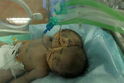 November 23, 2016 - Gaza City, Gaza Strip, Palestinian Territory - One-day-old Palestinian conjoined twin boys lie in an incubator at the nursery at al-Shifa Hospital in Gaza City on November 23, 2016  (Credit Image: © Ashraf Amra/APA Images via ZUMA Wire)