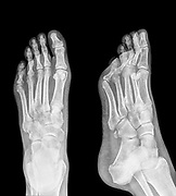 X-ray of a foot showing Plantar fasciitis (also known as Plantar fasciopathy or Jogger's heel) is a common painful enthesopathy of the heel and plantar surface of the foot characterized by inflammation, fibrosis, or structural deterioration of the plantar fascia of the foot. 48 year old male.