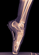 x-ray of a ballet dancer standing on pointe