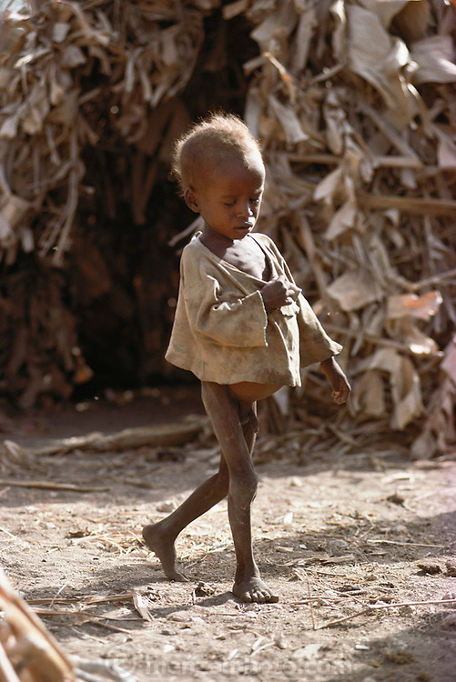 A child in a refugee camp near Merca, 100 km. south of Mogadishu, war-torn capital of Somalia. March 1992.