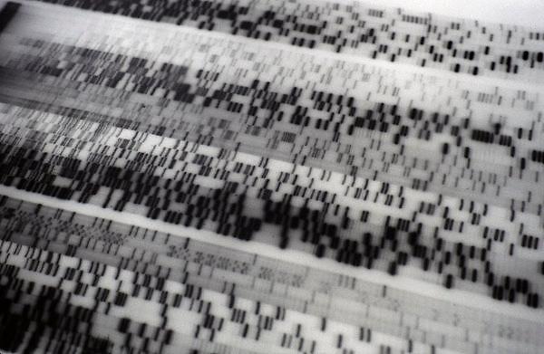 Nederland, Nijmegen, 5-2-2007 Het DNA-profiel van een mens, patient. Foto: Flip Franssen