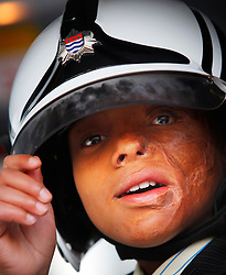 ©London News Pictures 2010.12.20. Sizwe Hlope, both badly burnt by fire, visits London Fire Brigade to warn of the dangers of candles at christmas on 20th Dec 2010. Photo credit should read: Olivia Harris/London News Pictures