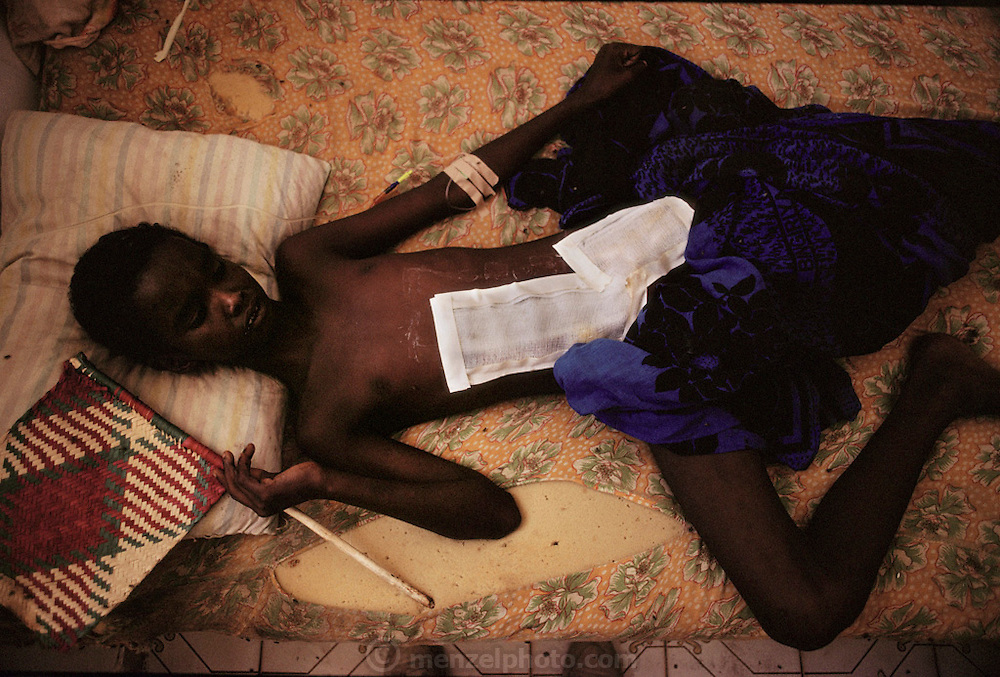 "A young shelling victim in a ""Villa Hospital"", a private home turned into a hospital in the north sector (Ali Mahdi controlled sector), in Mogadishu, war-torn capital of Somalia where 30,000 died between November 1991 and March 1992. March 1992."