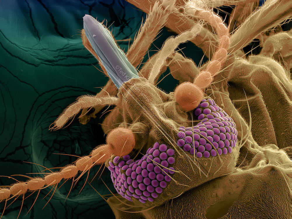 Color-enhanced Scanning Electron Micrograph (SEM) of a biting midge (Ceratopogonidae sp.), more commonly known as a No See-Um.   Magnification: x165 when printed 10 cm wide.
