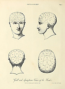 Physiognomy is the practice of assessing a person's character or personality from their outer appearance especially the face. The term can also refer to the general appearance of a person, object, or terrain without reference to its implied characteristics. Credence of such study has varied. The practice was well accepted by the ancient Greek philosophers, but fell into disrepute in the Middle Ages when practised by vagabonds and mountebanks. It was then revived and popularised by Johann Kaspar Lavater before falling from favour again in the late 19th century. Physiognomy as understood in the past meets the contemporary definition of a pseudoscience. Popular in the 19th century, it has been used as a basis for scientific racism. No clear evidence indicates physiognomy works. Physiognomy is also sometimes referred to as anthroposcopy, though the expression was more common in the 19th century when the word originated. Copperplate engraving From the Encyclopaedia Londinensis or, Universal dictionary of arts, sciences, and literature; Volume XX;  Edited by Wilkes, John. Published in London in 1825