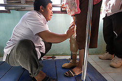 Phomachanh 55 years old from Sekong lost a leg in a UXO accident.<br /> Staff members assist her to grow used to the look and feel of a prosthetic leg.  After practice she will be able to walk almost as normal. The COPE centre assists many people who have lost limbs due to UXO accidents. Pakse, Lao PDR.