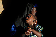 A young mother, Asnya Surajo , 25, is holding her daughter, Naimaatu Surajo, 4, a girl suffering from permanent brain damage and blindness, in Abare, a village affected by lead poisoning due to the unsafe techniques employed for extracting gold, in Zamfara State, Nigeria. Asnya lost six children: two miscarriages, and four while very young. Only her daughter Surajo was saved, but she survives as a suffering victim of lead pollution in the area. It is caused by ingestion and breathing of lead particles released in the steps to isolate the gold from other metals. This type of lead is soluble in stomach acid and children under-5 are most affected, as they tend to ingest more through their hands by touching the ground, and are developing symptoms often leading to death or serious disabilities. Nearby, in Anka, doctors from Medecins Sans Frontieres (MSF - Doctors Without Borders) are treating serious cases of lead poisoning, referred to them by local clinics in the surrounding villages. The treatment with MSF starts when blood lead level (BLL) samples reach 45 micrograms per decilitre. The Centers for Disease Control and Prevention (CDC) states that a BLL of 5 micro-g/dL or above is a cause for concern. The cycle of medicines lasts for 20 days. After that, the child's blood is tested and a new round of treatment is provided. Treatment can last years, as lead is reduced in the blood, but it persists noticeably within the bones, especially if the patients return to the same polluted environment. Remediation of the affected villages, a campaign of awareness, and the introduction of safer mining techniques are pivotal to the long-term solution of a hazardous trend that has already killed over 460 children, and it is bound to grow in size, fostered by the ever-rising price of gold.