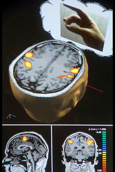 Nederland, Nijmegen, 20-2-2006..In het UMC Radboud wordt mbv MRI scanner onderzoek gedaan naar processen die zich in de hersenen afspelen. Cognitieve neuroscience. Hierbij wordt samengewerkt met het FC Donderscentrum, het NICI en het NCMLS. Een van de doelen is meer inzicht te krijgen in de ziekte van Parkinson. Op de foto is te zien welk deel van ons brein aktief is bij het bewegen van duim en vinger. Wetenschap, motoriek, modern, hoogstaand, geavanceerd medisch hersenonderzoek. Vooruitgang dankzij computers...Foto: Flip Franssen