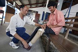 Mr.Norvaly has received a prosthetic limb and is receiving help from Mr.Sommai at National Rehabilitation Centre. COPE helps to fund much of the work that happens here and also developed the exhibition centre which displays used items of UXO (unexploded Ordnance) and the prosthetic limbs either locally made or made by the centre, Vientiane, Lao PDR