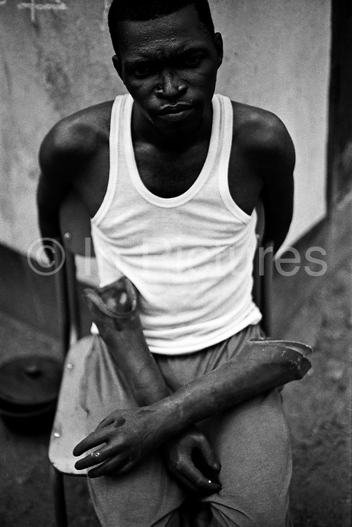 Ibrahim, a double amputee and his cosmetic prothesis. Hastings camp, Freetown.<br /> Rebel forces, the Revolutionary United Front in Sierra Leone, systematically murdered, mutilated, and raped civilians during the country's civil war as a policy of terror