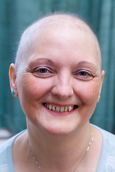 Woman who has lost her hair as a result of undergoing Chemotherapy treatment for breast cancer,