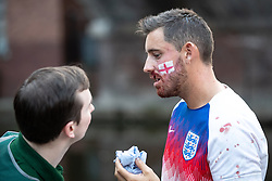 © Licensed to London News Pictures . 11/07/2018. Manchester, UK. A paramedic tends to an injured man . Football fans watch England play against Croatia in the World Cup semi finals, on a big screen at Castlefield Bowl in Manchester City Centre . Until today , Manchester had been the largest city in England not to be showing World Cup matches to the public on a big screen . Photo credit: Joel Goodman/LNP