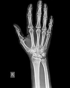 x-ray of wrist, hand and fingers of a 64 year old male patient with a Distal Radius Fracture