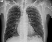 x-ray of a 72 year old patient patient with pneumonia after Sternotomy surgery