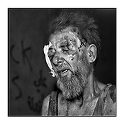 Faces of Mosul<br /> <br /> A collection of images from 4 time Pulitzer prize winning photographer Carol Guzy, gives us a glimpse into the faces of those affected by the fierce conflict with ISIS in Mosul. Wounded and weak, most who survived now face an uncertain future in the limbo of IDP camps. Shattered lives, lost loved ones and escape from the rubble of collapsed homes and the evil of ISIS doctrine, leaves scars of emotional trauma even more difficult to heal. The war in Mosul is over, but the humanitarian crisis continues.<br /> <br /> osul, Iraq - A man receives emergency medical care from Global Response Management at a Trauma Stabilization Point. Civilians, many injured and weak, flee as the fierce battle with ISIS continues in West Mosul amid ruins of the Old City. <br />  ©Carol Guzy/zReportage.com/Exclusivepix Media