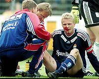 BLODET RANT: Slik så Jostein Flo ut rett etter sammenstøtet med Ham Kam-stopperen Ronny Pedersen. Blodet rant, og Flo ble brakt til sykehus. FOTO: ANDREAS FADUM