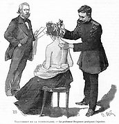 Professor Bergmann  injecting a tubercular patient, 1891. Bergmann assisted Robert Koch (1843-1910) in investigations on treatment of Tuberculosis. In 1890 Koch introduced Tuberculin which he thought was a cure for TB. Its curative powers were a disappointment and its value as a diagnostic tool was overlooked.  From 'La Science Illustree'. (Paris, 1891). Engraving.