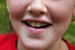 Close up of brace on a young girls teeth,
