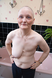 Woman who has had a mastectomy; the removal of a breast in response to breast cancer; in her bathroom,