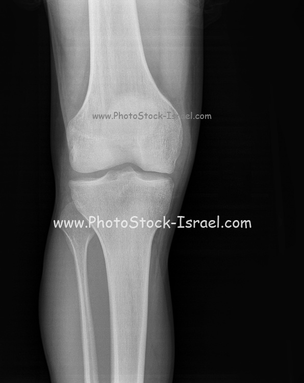 Synovitis of the right knee of a 27 year old male front view
