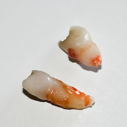 Two Primary teeth on white background
