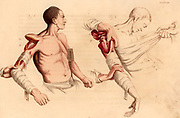 Amputation of the arm at the shoulder.  On the left the incision has been made, exposing the head of the humerus.  On the left the flap has been enlarged and the head of the humerus dislocated.  From 'Illustrations of the Great Operations of Surgery' by Charles Bell (London, 1821).  Hand-coloured engraving.
