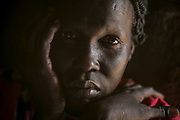 Nyaduk Gatluak, 38, was raped by three Dinka soldiers in December 2013 near her home in Juba, The soldiers also killed one of her sons. She was pregnant from the rape and gave birth to a boy who is now four years old. She lives with her children in Bidibidi camp in Uganda.