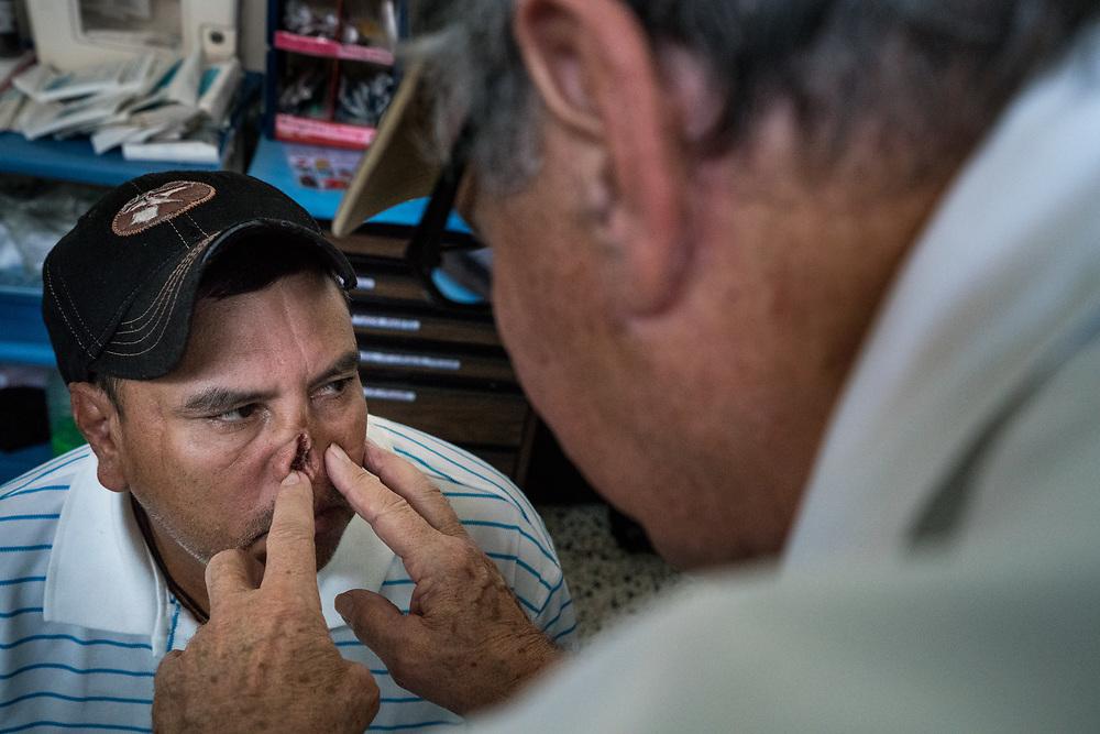 Dr. Lester Mohler examines Modesto Villanova Chavez, 43, during consultations at Occidente Hospital in Santa Rosa de Copan, Copan, Honduras on Feb. 19, 2017. Modesto suffered a machete attack 11 years ago and needs repair to his exposed nostrils.