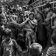 A young boy victim of a landslide in the Rohingyas refugge camp of Balukhali. Since the end of august 2017, the beginning of the crisis, more than 600,000 Rohingyas have fled Myanmar to seek refuge in Bangladesh. Cox's Bazar -october 27th 2017.<br /> Un jeune garçon victime d'un glissement de terrain dans le camp de réfugiés Rohingyas de Balukhali. Depuis le début de la crise, fin août 2017, plus de 600000 Rohingyas ont fuit la Birmanie pour trouver refuge au Bangladesh. Cox's Bazar le 27 octobre 2017.