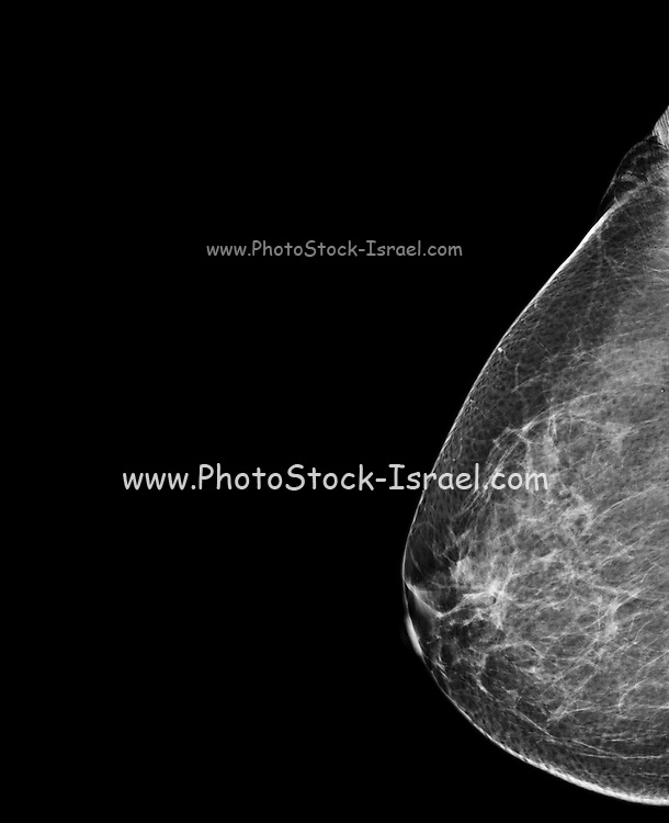 Breast Mammography. X-ray of woman's breast for early identification of breast cancer. Breast cancer is the most common type of cancer in women. The cancer can invade surrounding tissue and spread to other parts of the body (metastasis). Treatment is with removal of the tumour only, where possible, or complete removal of the breast. Surgery is often combined with radiation therapy and chemotherapy.