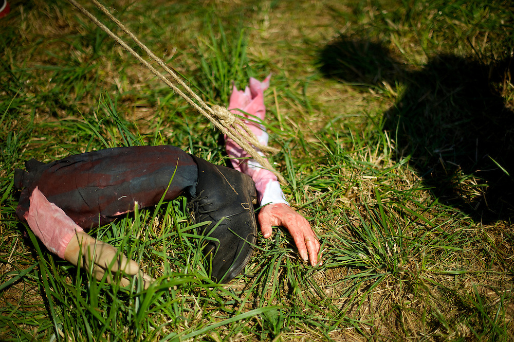 Rubber hands and a foot demonstrate a surgeon's amputation props during the 149th Gettysburg Reenactment in Gettysburg, Pennsylvania.