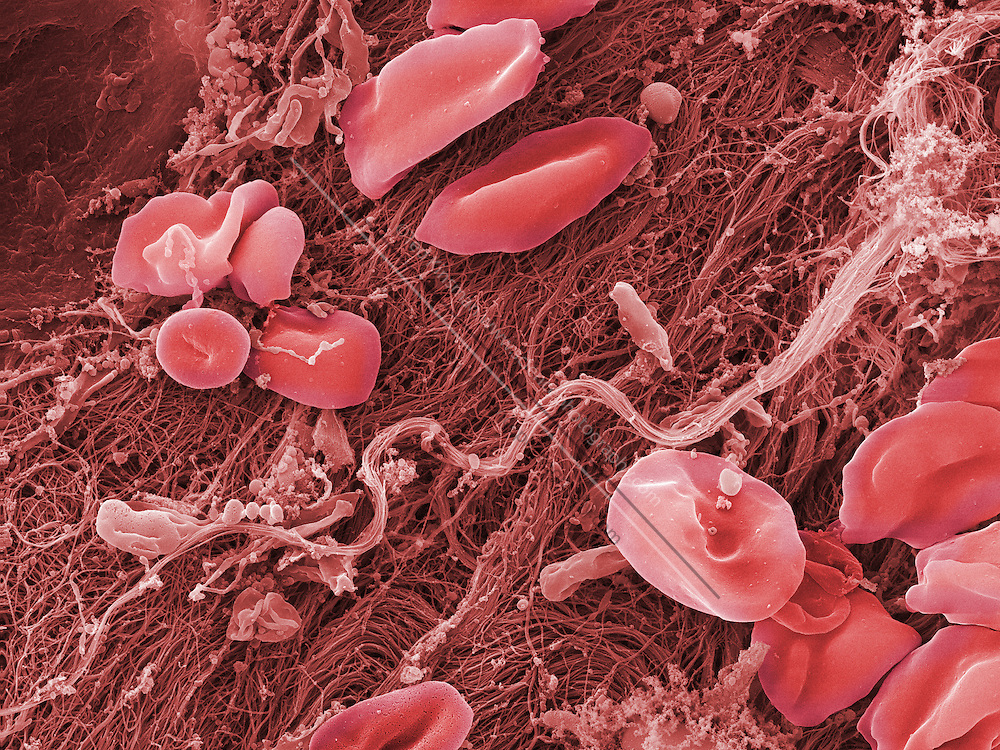An SEM image of Human blood platelets in the process of clotting.  This sample was taken from the root of a tooth from an 18 year old male during oral surgery.  Magnification is x3330 when printed 10 cm wide.