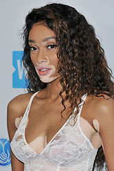 Winnie Harlow arrives at We Day California 2017 held at The Forum in Inglewood, CA on Thursday, April 27, 2017. (Photo By Sthanlee B. Mirador) *** Please Use Credit from Credit Field ***