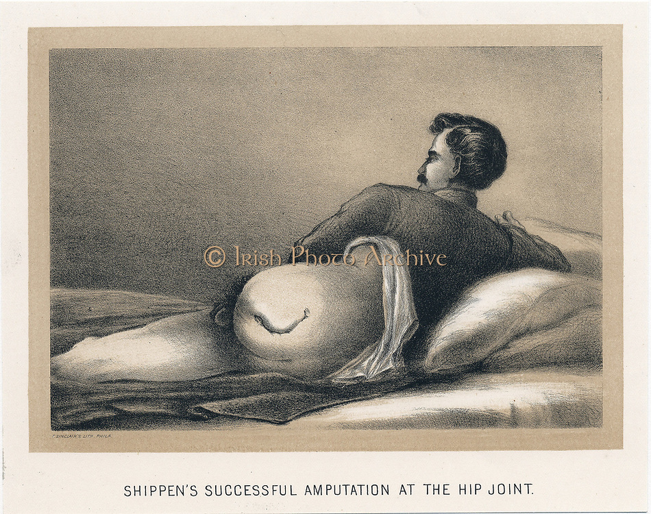 Successful amputation at the hip joint on casualty in American Civil War. Mortality from this procedure was in excess of  70%. Shippen's amputation. From 'Circular No.6', Surgeon General's Office, Washington, 1 November, 1865. Tinted lithograph.