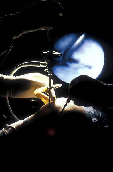 Stock photo of surgery.