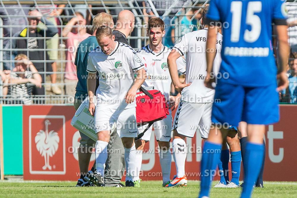 09.08.2015, Stadion Lohmühle, Luebeck, GER, DFB Pokal, VfB Luebeck vs SC Paderborn 07, 1. Runde, im Bild Henrik Sirmais (Nr. 9, VfB Luebeck) wird mit einem blutigen Gesicht verarztet // during German DFB Pokal first round match between VfB Luebeck vs SC Paderborn 07 at the Stadion Lohmühle in Luebeck, Germany on 2015/08/09. EXPA Pictures © 2015, PhotoCredit: EXPA/ Eibner-Pressefoto/ KOENIG<br /> <br /> *****ATTENTION - OUT of GER*****