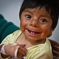 Nine month old Roger smiles just hours after an operation to remove extra finger and toe from each limb. Oregon orthopedic doctors and support staff helped hundreds of Peruvian children in Coya, Peru performing corrective surgeries and therapy to improve their quality of life.