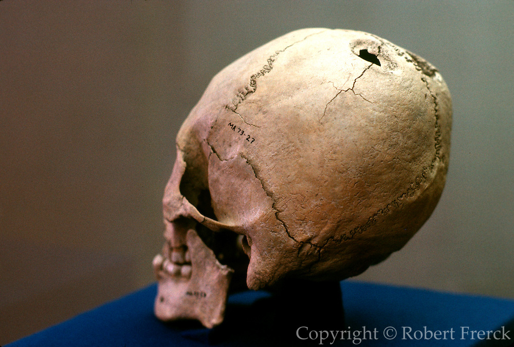 MEXICO, PREHISPANIC MIXTEC skull with cranium surgery