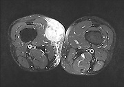 MRI (Magnetic resonance imaging) of a malignant tumour (Sarcoma) on the right thigh of a male patient