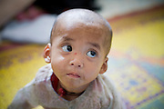 """23 FEBRUARY 2008 -- MAE SOT, TAK, THAILAND: So Pai, a two year old Karen boy weighing about 13 pounds, waits for treatment for malnutrition at the Mae Tao Clinic in Mae Sot, Thailand. His family lives in Burma and had to travel more than six hours to bring the child to the clinic. The clinic treated more than 80,000 people in 2007, all Burmese. Most of them are living illegally in Thailand, but many come to the clinic from Burma because they either can't afford medical care in Burma or because it isn't available to them. There are millions of Burmese refugees living in Thailand. Many live in refugee camps along the Thai-Burma (Myanmar) border, but most live in Thailand as illegal immigrants. They don't have papers and can not live, work or travel in Thailand but they do so """"under the radar"""" by either avoiding Thai officials or paying bribes to stay in the country. Most have fled political persecution in Burma but many are simply in search of a better life and greater economic opportunity.  Photo by Jack Kurtz"""