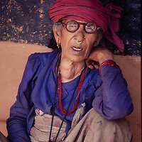 Villager suffers from a goiter and poor vision in the Marsyandi Valley east of Annapurna in Nepal.