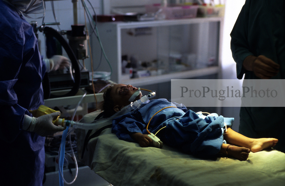 KABUL 16 August 2005..Maiwand Hospital....Doctors & Nurses are preparing Shabana for her Plastic Surgery.....Shabana. a nine months  old Afghan girl, has been diagnosed with a 'neurofibroma'. This is a tumor or growth located along a nerve or nervous tissue. It is an inherited disorder. If left unchecked, a neurofibroma can cause severe nerve damage leading to loss of function to the area stimulated by that nerve.....The Rehabilitative Surgery Unit (RSU) at Maiwand Hospital is fully supported by the French NGO Medical Refresher Courses for Afghans (MRCA), also by the French Minister of Foreign Affairs, and by the Embassy of Japan under the Grant Assistance for Grassroots Project (GAGP). The Italian NGO Operation Smile Italia Onlus provides training to the Doctors. ....Maiwand Hospital dates back to the rein of Nadir Shah in the 1930s.
