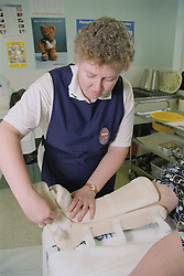 Diabetic patient being fitted with a belowknee bivalve cast in outpatients plaster room,