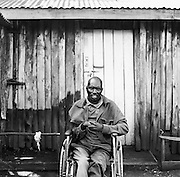 NAIROBI, KENYA – MARCH 14, 2010: Portrait of a disabled man who is HIV positive.