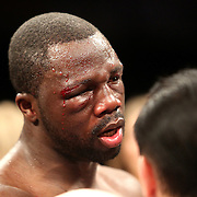 Super Middleweight boxer Vladine Biosse is cut above his left eye during Showtime Televisions ShoBox:The Next Generation boxing match at the Event Center at Turning Stone Resort Casino on Friday, February 28, 2014 in Verona, New York.  (AP Photo/Alex Menendez)